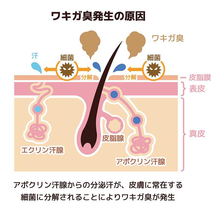 ワキガ臭発生の原因のイメージ
